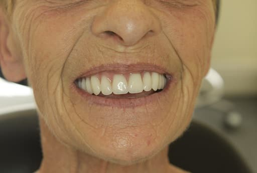 Ainsty Dental After-New-Dentures