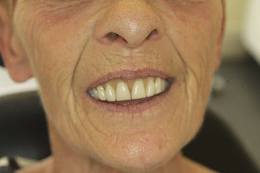 Ainsty Dental Before-New-Dentures