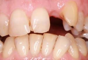 Before Dental Implant