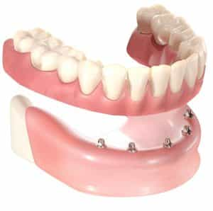 Denture supported on Dental Implants