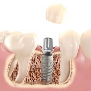 Crown on a Dental Implant